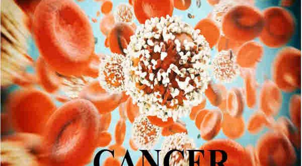 Learn How to Know Cancer Symptoms