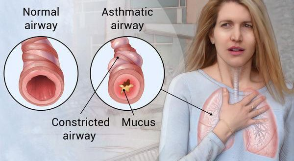 If you have a terrible disease like asthma then adopt this easy home remedy
